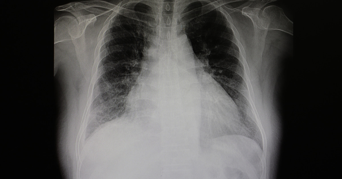 x ray of chest