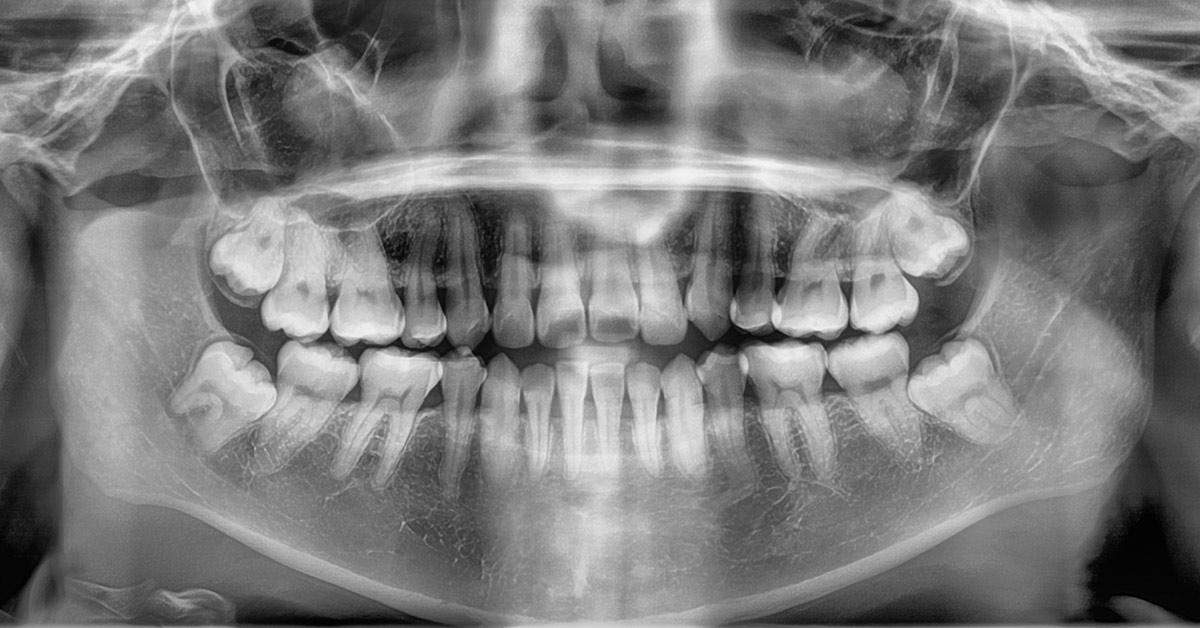 regrow teeth